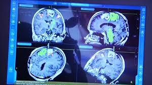 بالصور اعراض سرطان الدماغ , مرض سرطان الدماغ 2232 1