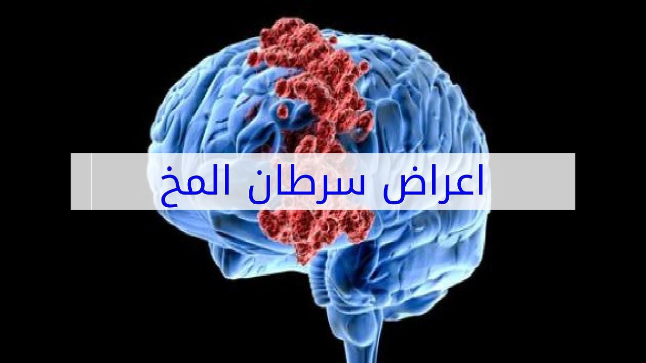 بالصور اعراض سرطان الدماغ , مرض سرطان الدماغ 2232