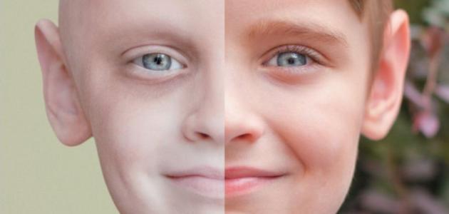 بالصور اعراض مرض السرطان , معلومات عن مرض السرطان 2310 2