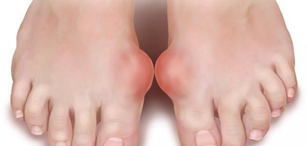 صورة اعراض النقرس , مرض النقرس