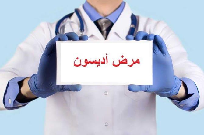 صورة مرض اديسون , اعراض وعلامات مرض اديسون