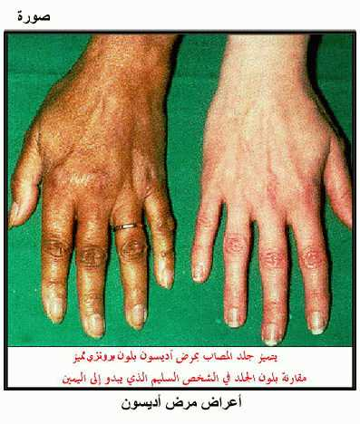 صور مرض اديسون , اعراض وعلامات مرض اديسون