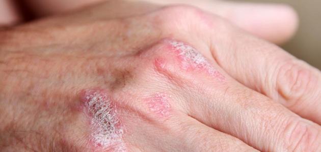 صورة علاج الصدفية بالاعشاب , طرق بديلة لعلاج الصدفية