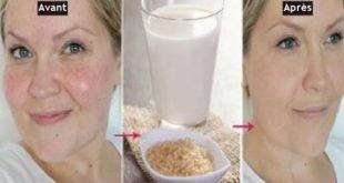 بالصور خلطات طبيعيه لتبيض الوجه , افضل خلطة لنضارة البشرة 3892 3 310x165