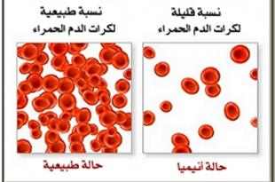 صور مرض فقر الدم , ماهو فقر الدم واسبابه