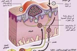 صورة مرض الهربس , تعرف اكثر علي مرض الهربس اعراضه و طريقة انتقاله