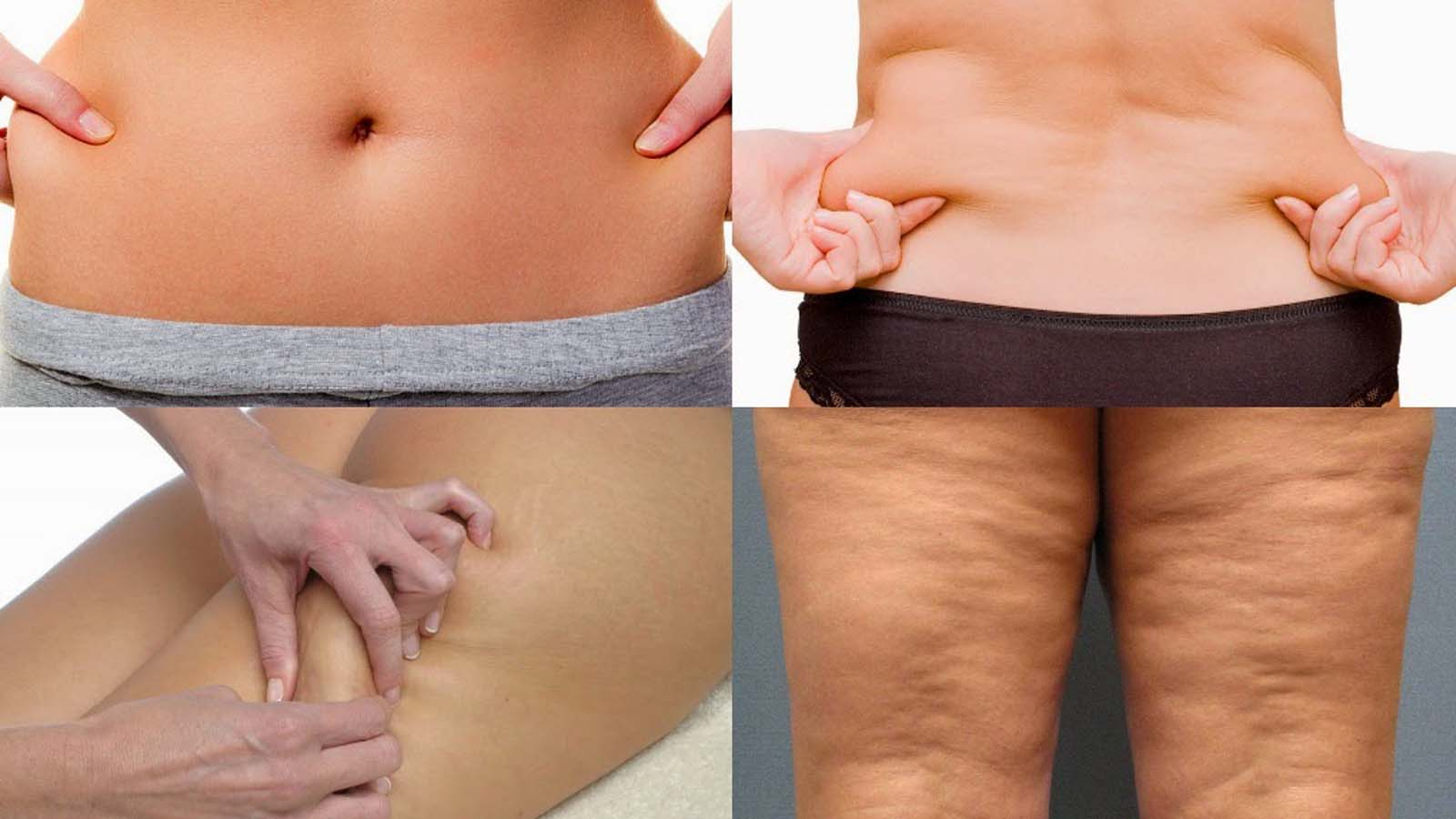 بالصور ما هو السيلوليت , السيلوليت مما يتكون و كيفية علاجه 1097 1