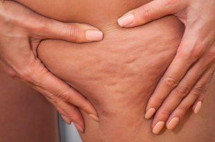 صوره ما هو السيلوليت , السيلوليت مما يتكون و كيفية علاجه