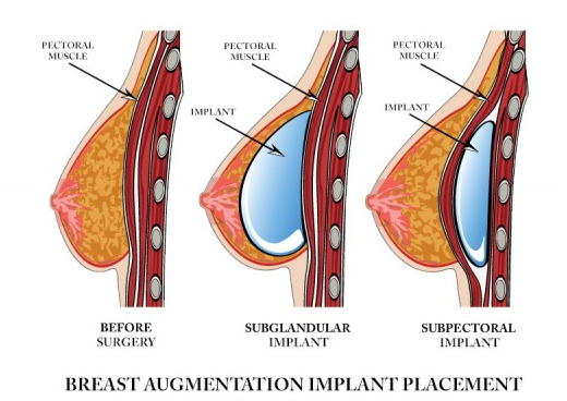 بالصور طرق تكبير الثدي , عملية تكبير الثدى التجميلية 4099