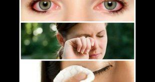 صوره علاج حساسية العين , افضل طريقة لعلاج حساسية العين