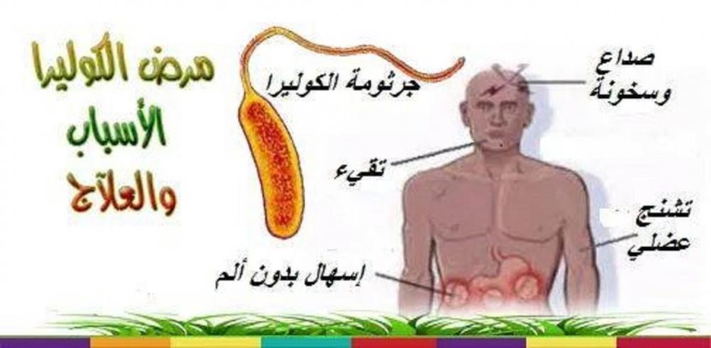 صورة مرض الكوليرا , ما هو الكوليرا اسبابه وطرق علاجه
