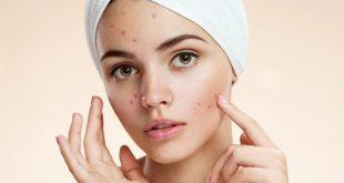صوره تنظيف الوجه , كيفية تنظيف الوجه بابسط الطرق