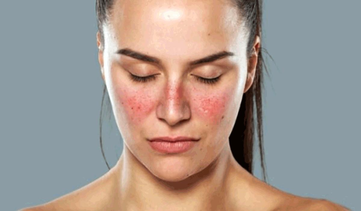 صور مرض الذئبة الحمراء , تعرف على اعراض هذا المرض