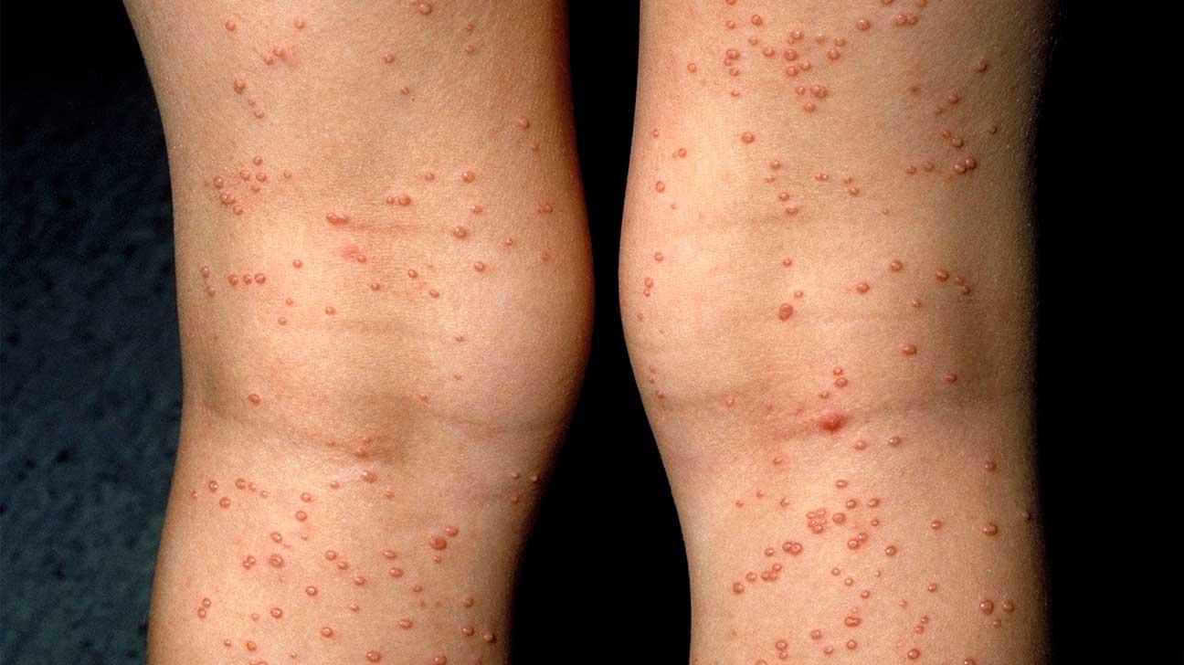 بالصور اعراض الايدز , كيفيه معرفه اظهار هذا المرض والوقايه منه 6539 2