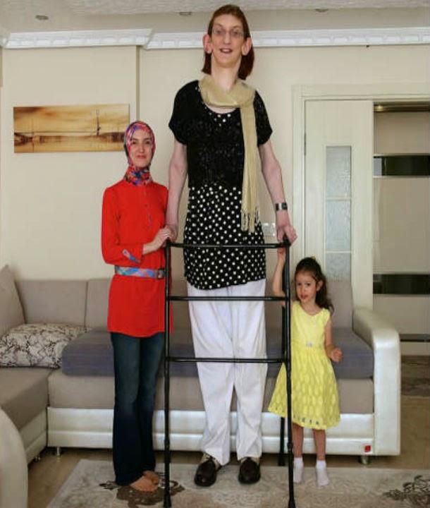 بالصور اطول امراة في العالم , شاهد بالصور اغرب النساء طولا 6548 1