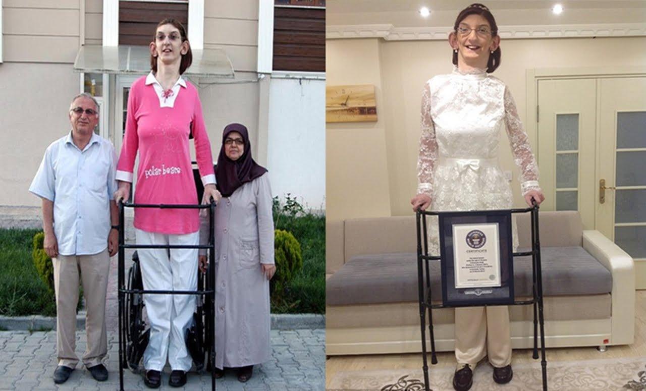 بالصور اطول امراة في العالم , شاهد بالصور اغرب النساء طولا 6548 2