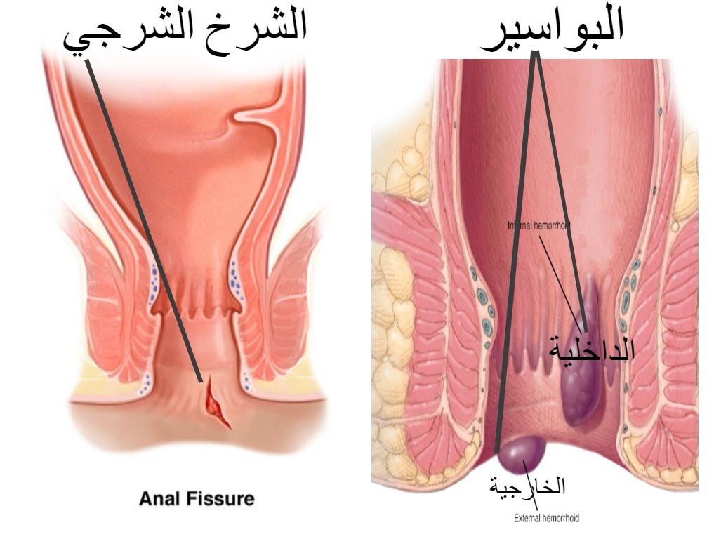 بالصور اعراض البواسير , كيفيه التعرف على اعراض هذا المرض 6576 2