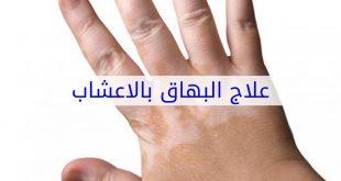 علاج البهاق بالاعشاب , تعرف على اروع علاجات الطب البديل