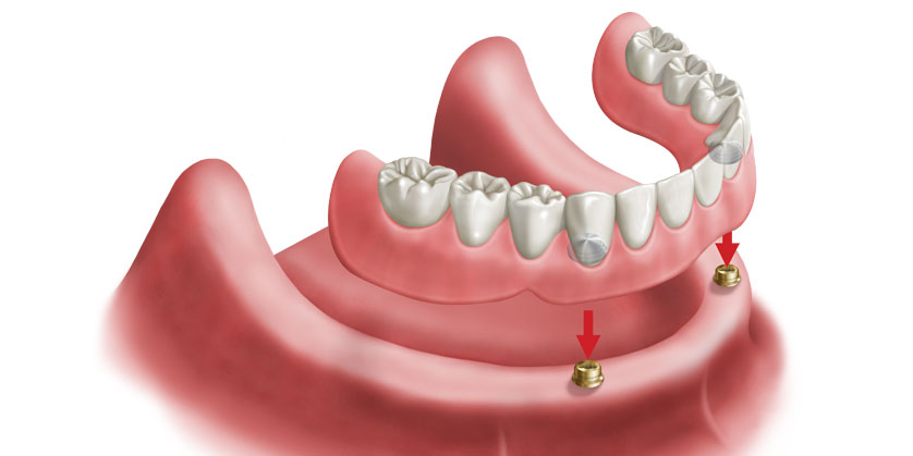 بالصور طقم اسنان , افضل حل لتساقط الاسنان 957 2