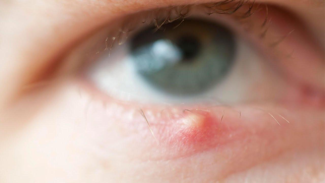 صوره علاج الخراج , شاهد طرق مختلفه للوقاية من هذا المرض
