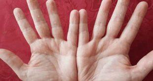 بالصور سبب تقشر جلد اليدين , مشكلة تقشير الايادي والجلد وحلها 12122 2 310x165