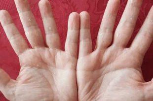 صورة سبب تقشر جلد اليدين , مشكلة تقشير الايادي والجلد وحلها