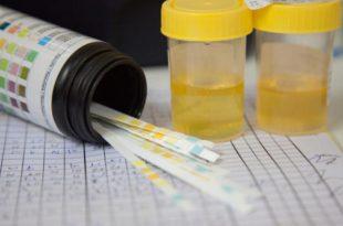 صور علاج زلال الحمل , كيفية الوقاية من زلال البول للحامل