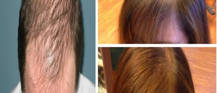 صور خلطة لنمو الشعر , وصفة هايلة لنمو وزيادة كثافة الشعر