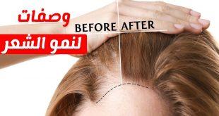 بالصور خلطة لنمو الشعر , وصفة هايلة لنمو وزيادة كثافة الشعر 12228 2 310x165
