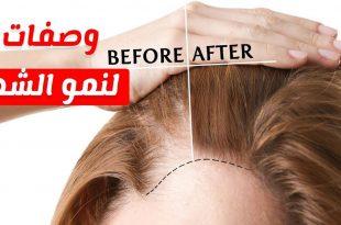 صورة خلطة لنمو الشعر , وصفة هايلة لنمو وزيادة كثافة الشعر
