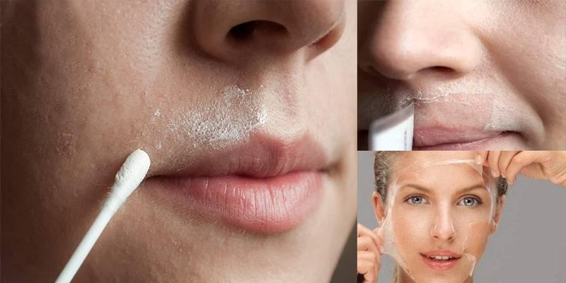 صور ازاله شعر الوجه , طرق ازالة الشعر للوش بسهولة