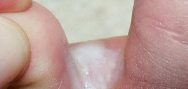 صورة علاج فطريات اصابع القدم , الحل لمعالجة الفطريات بصوابع الرجلين