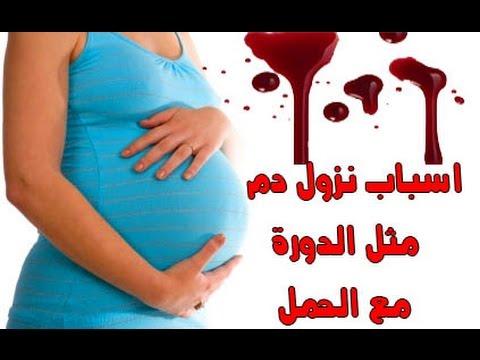 صورة نزول الدورة اثناء الحمل , تفسير نزول دم خلال الحمل