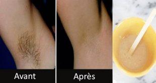 صور الشعر تحت الابط , طريقة ازالة الشعر اسفل الابط