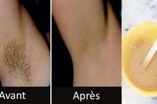 صورة الشعر تحت الابط , طريقة ازالة الشعر اسفل الابط