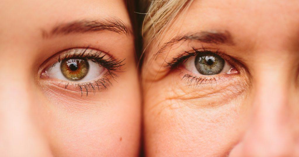صورة خلطة للتجاعيد حول العين , وصفة سهلة للتجاعيد الموجودة حول العين