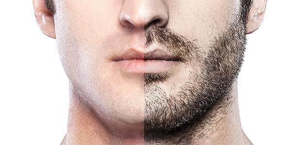 صورة انبات شعر اللحية بالثوم , استخدامات التوم لتتقيل الدقن