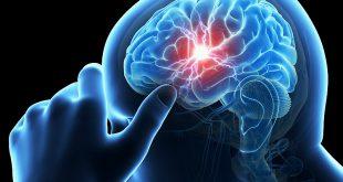 صور اعراض نزيف الدماغ الخفيف , اهم مظاهر النزيف الدماغي البسيط