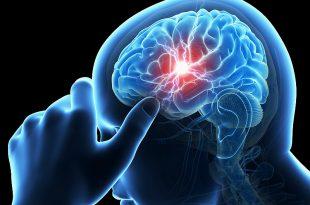 صورة اعراض نزيف الدماغ الخفيف , اهم مظاهر النزيف الدماغي البسيط
