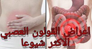 صورة اعراض التهاب القولون , ما هى اسباب تهيج القولون المزعجة